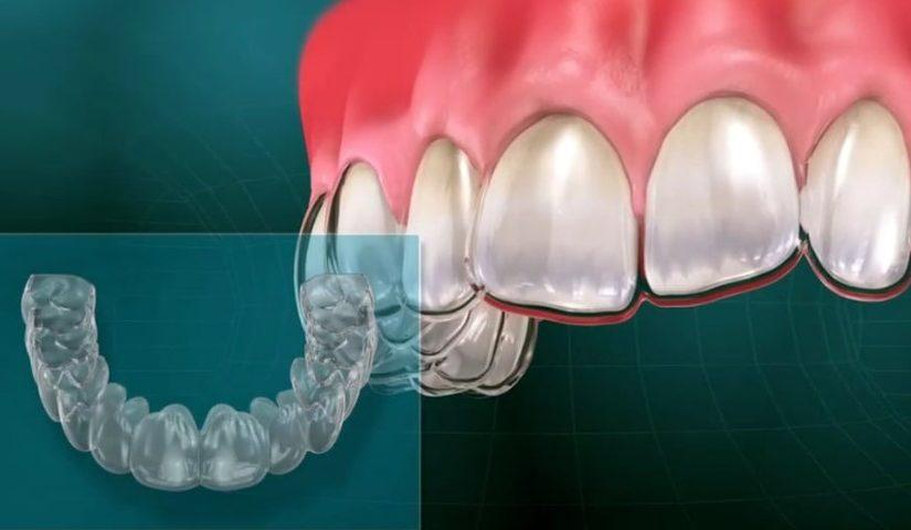 Zobni aparat za lep nasmeh in zdrave dlesni