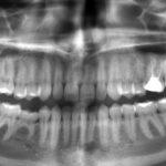 Vzroki in simptomi dentalnega granuloma